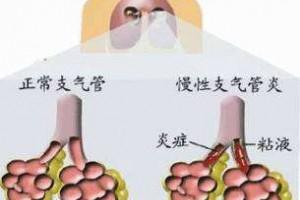 北京国康姚宏胤院长警告:随处可见的老慢支,你也可能在路上!